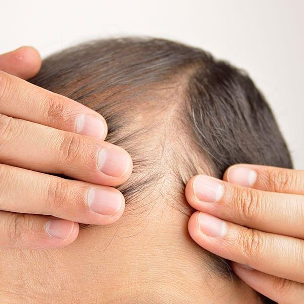 Mandligt arveligt hårtab ( androgen alopeci)