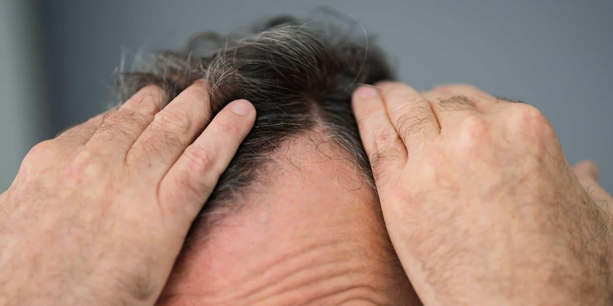 Hårkur mod hårtab