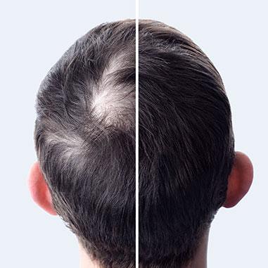 Resultaterne af en hårtransplantation
