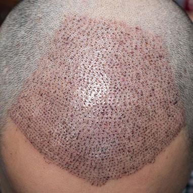 Efter hårtransplantationen